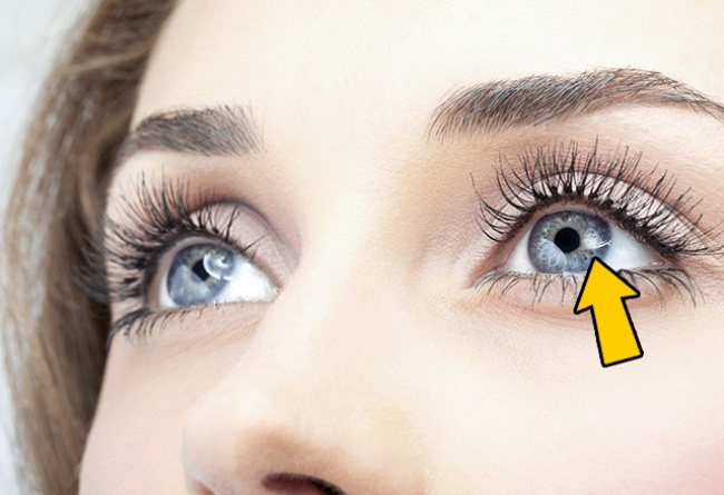 12Things Your Eyes Can Tell About Your Health - Εικόνα 2