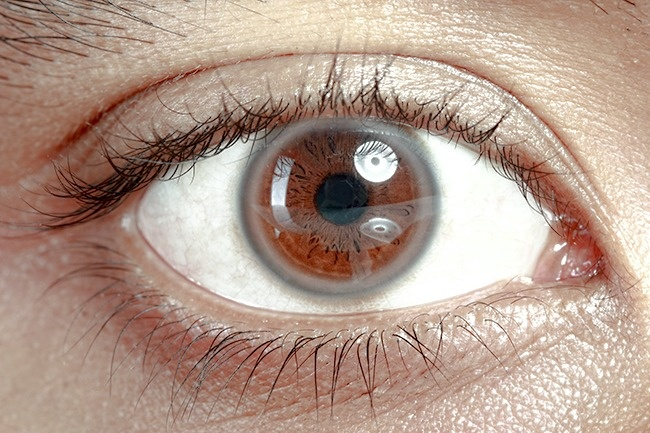 12Things Your Eyes Can Tell About Your Health - Εικόνα 3