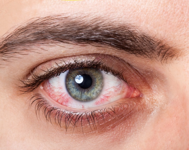 12Things Your Eyes Can Tell About Your Health - Εικόνα 4