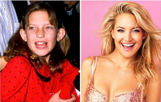 24Celebrities Who Proved That Graduation Changes Everything - Εικόνα 21