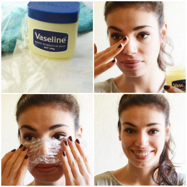 9Natural Ways toGet Rid ofBlackheads and Whiteheads Fast - Εικόνα 4